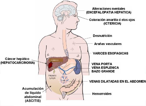 inflamación del higado