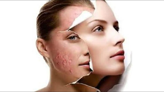 quitar el acne