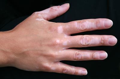Que schischat el hongo de las uñas de los pies