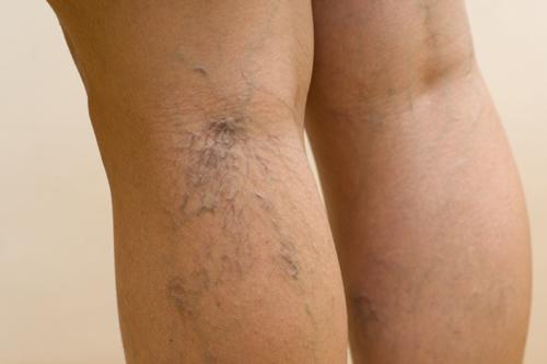 La cirugía láser del pie de la vena
