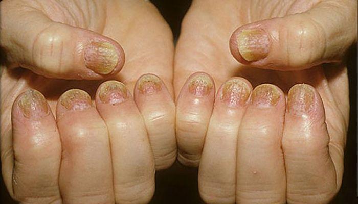 hongos en las uñas de las manos