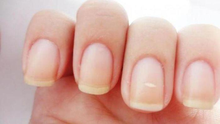 Como eliminar hongos en la u as de las manos f cilmente - Eliminar hongos de la pared ...