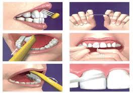prevenir la gingivitis