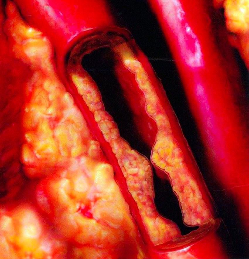 Dieta-Para-el-Colesterol-Alto-22