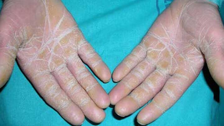 El hongo entre los dedos de los pies el tratamiento de la foto