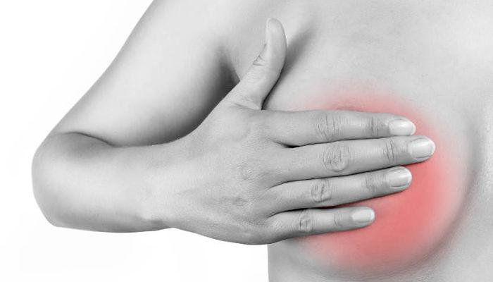 mastitis en el periodo de lactancia