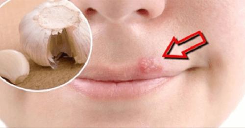 Remedios caseros para combatir el herpes labial