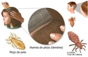 remedios caseros para los piojos y liendres