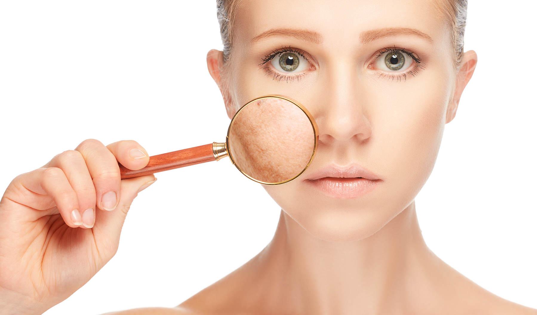 La crema que rejuvenece para las caras y de las manchas de pigmento