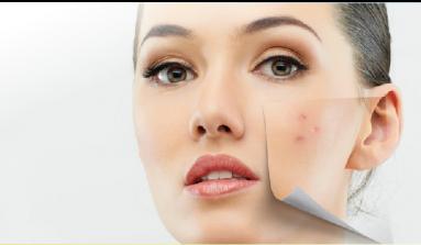 Descubre como cerrar fácilmente los poros abiertos de tu rostro: