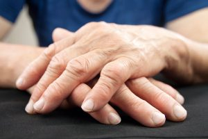los medicamentos naturales para la artritis