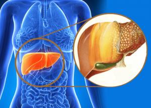milagrosos remedios caseros para el hígado graso