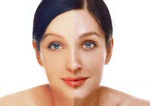 conoce remedios naturales para las manchas en la cara