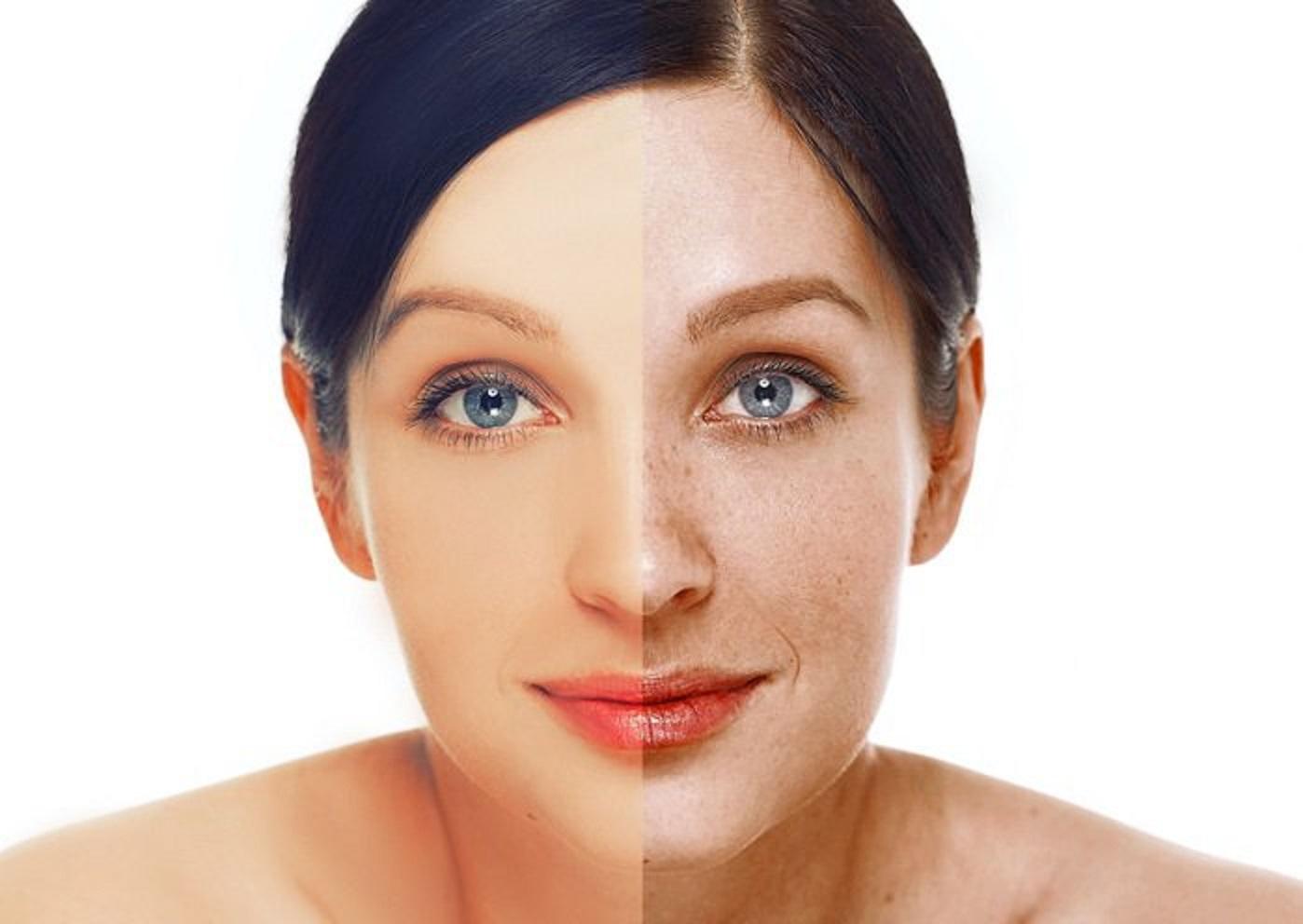 remedios naturales para las manchas en la cara