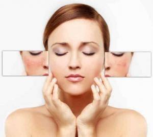 6 tips para disminuir las manchas faciales