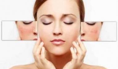 6 Infalibles tips para disminuir las manchas faciales