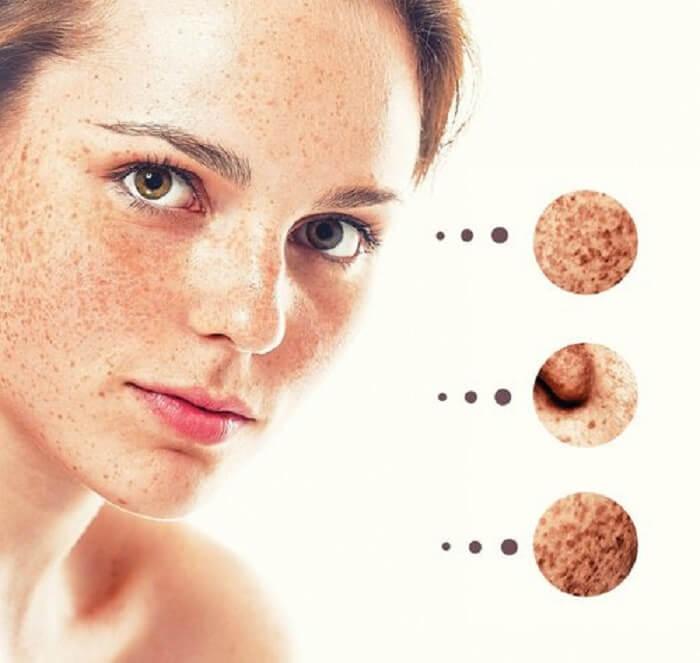 La crema para la piel con las manchas de pigmento
