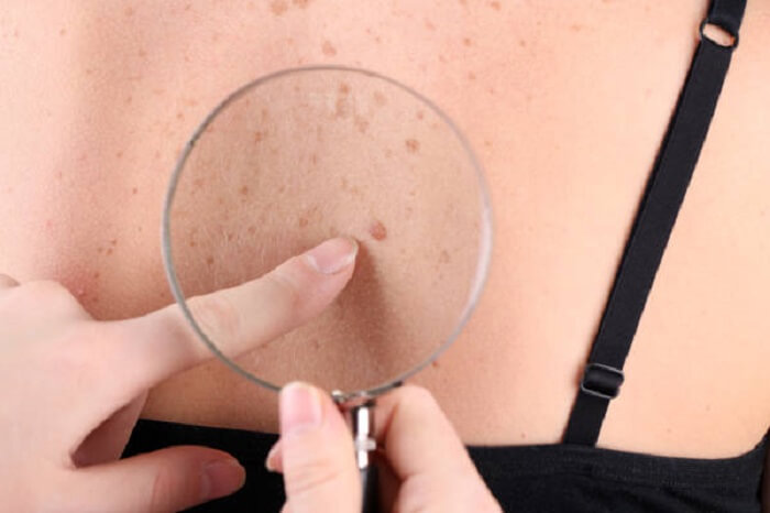 Quitar las manchas de pigmento