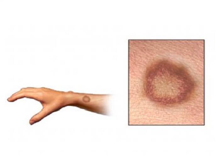 Infecciones de la piel chupadas