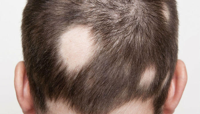 alopecia areata - enfermedad de la piel