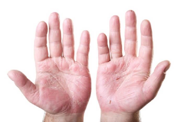 descubre las enfermedades de la piel