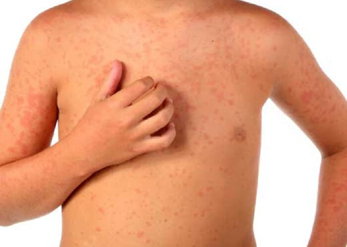 El régimen a atopicheskom la dermatitis a los niños