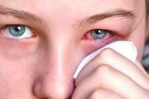 los mejores remedios naturales para la conjuntivitis