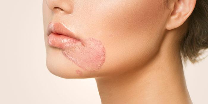 hongo en la piel