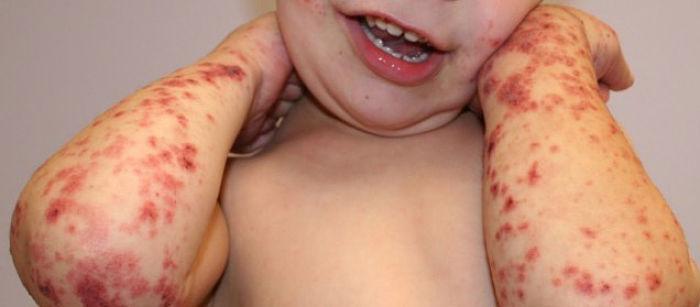 tratamiento para las manchas de sangre en la piel