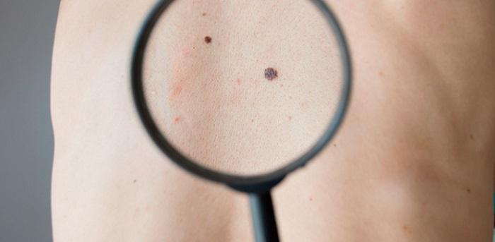 tipo de enfermedad de la piel