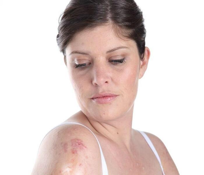 tipo de enfermedades de la piel