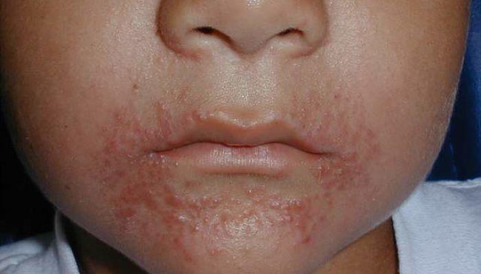 Tipos De Alergias En La Piel Que Debes Conocer
