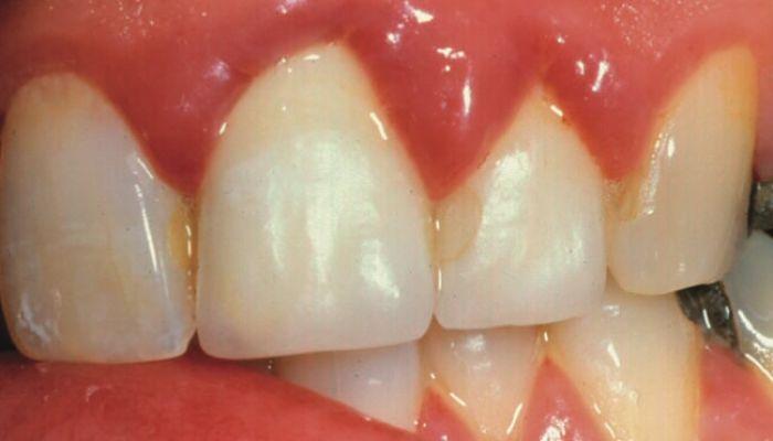 cómo desinflamar las encías