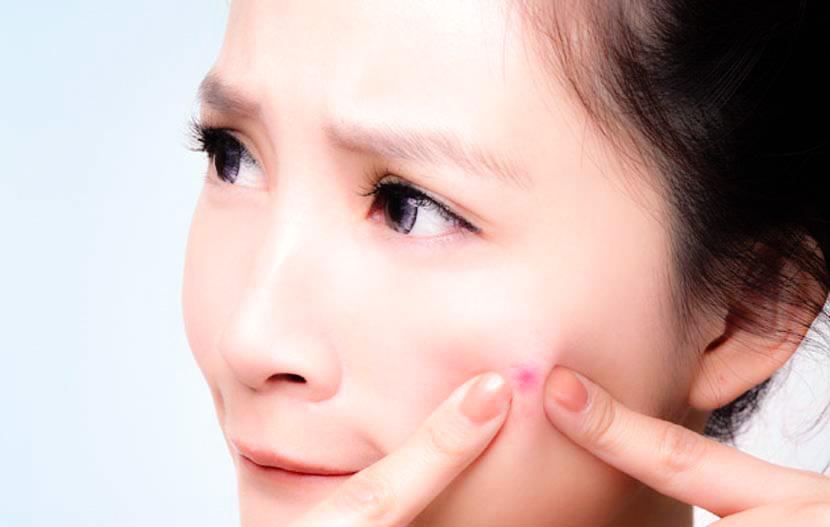 granitos en la piel