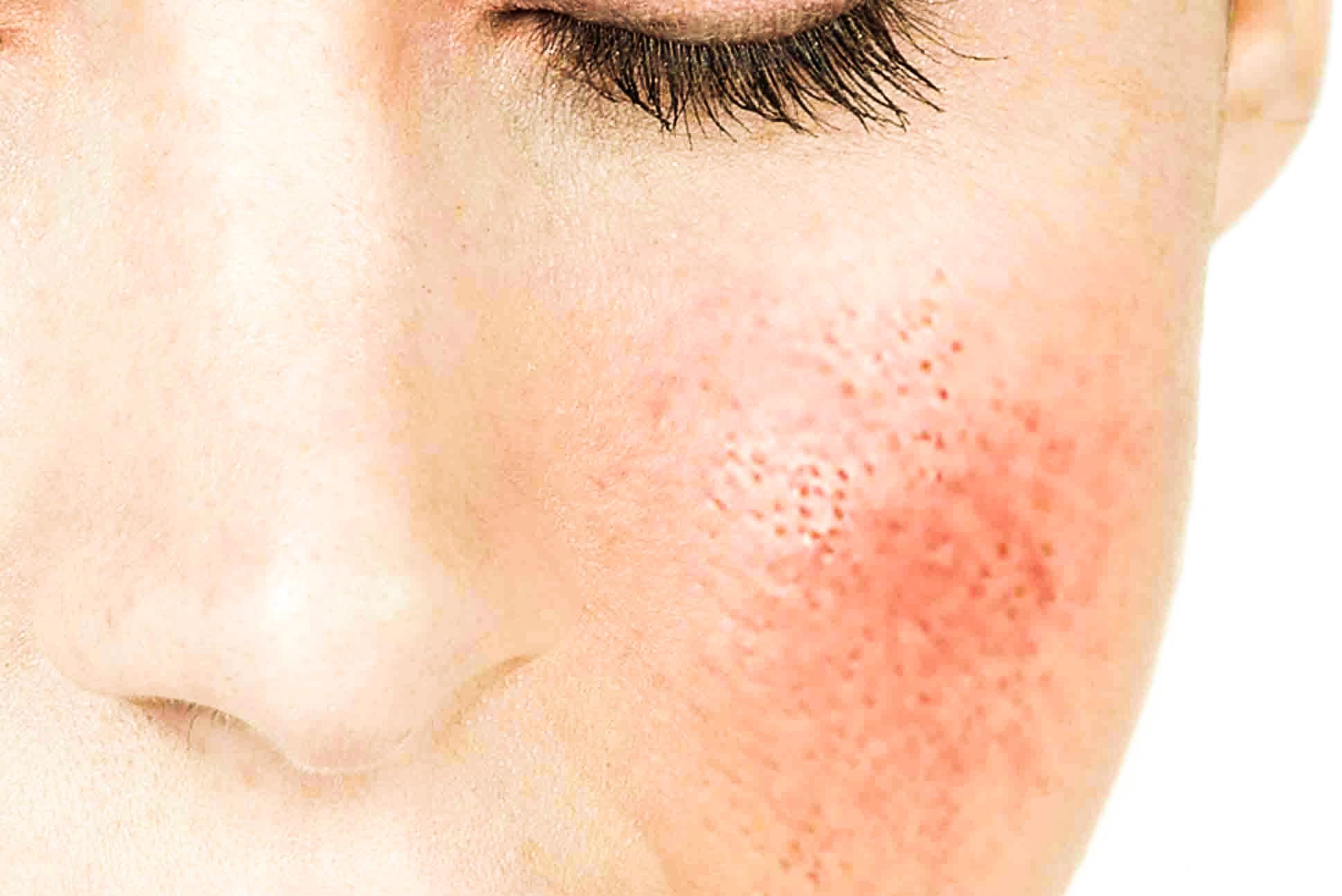 C mo evito la irritaci n en la piel de mi rostro y como - Rodillo para lacar ...