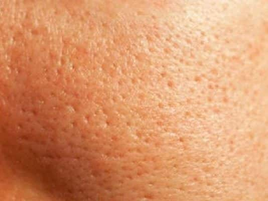 como cerrar los poros