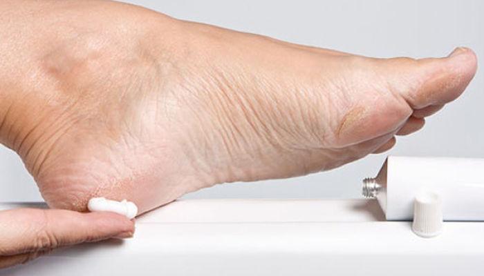como eliminar los callos de los pies