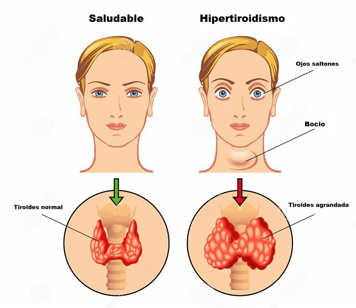 Hipotiroidismo y sobrepeso