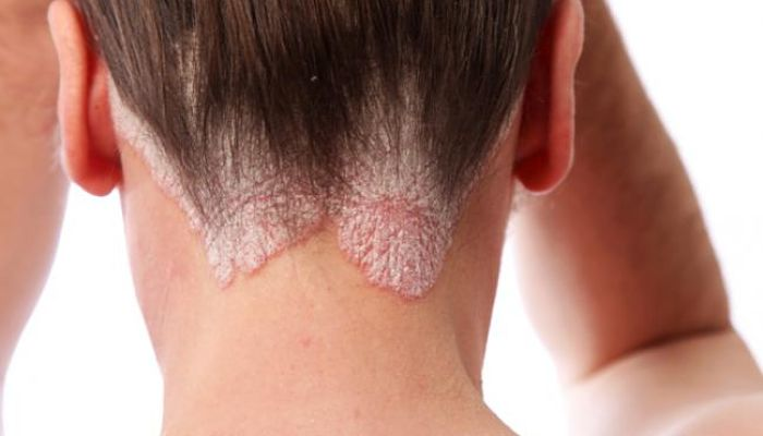 Las grietas sobre los altos de la psoriasis