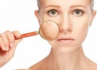 como eliminar las manchas en la cara