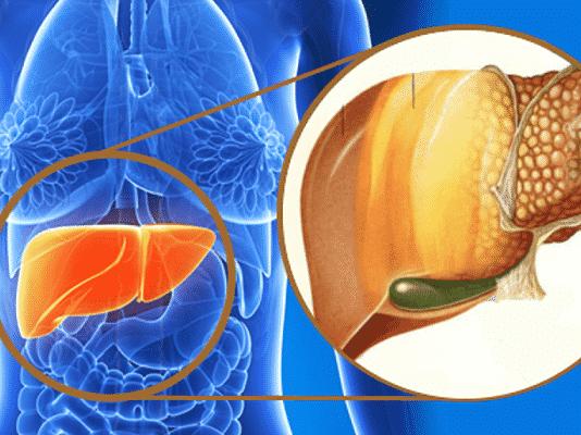 remedios para el higado graso