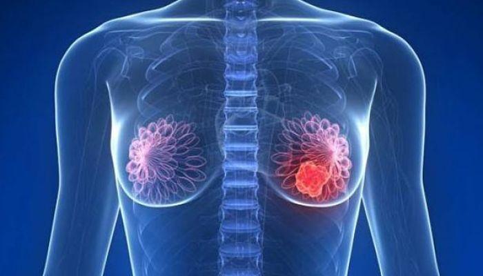 causas de cáncer de seno
