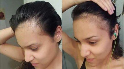 Biotina para el cabello y su caída