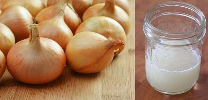 como evitar la caída del cabello con el jugo de cebolla