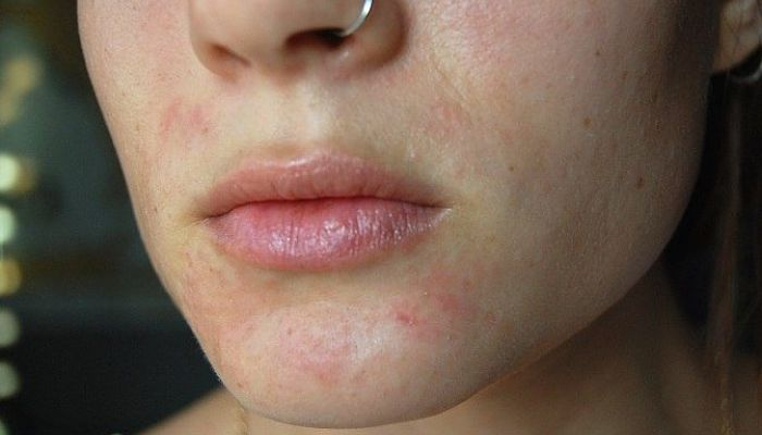 remedios caseros para la dermatitis